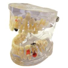 Pathological Pediatric Dental Model, 2-1/2