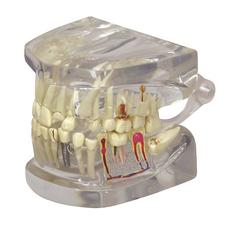 "Clear Jaw With Teeth Model, 2-1/2"" W x 2-4/5"" H x 2-1/2"" D"