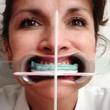 Facial Plane Relator