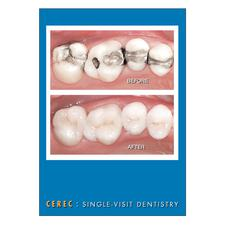 CEREC Postcards