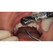 Dr. Christensen's Direct Resin Veneers DVD